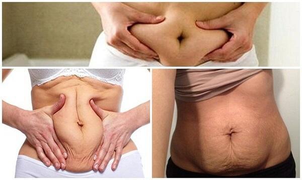 5 bí quyết căng da bụng bị chùng sau sinh cực hiệu quả 1