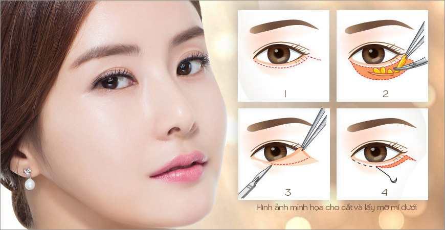 Những cách làm tan mỡ mí mắt không thể nào dễ hơn 2