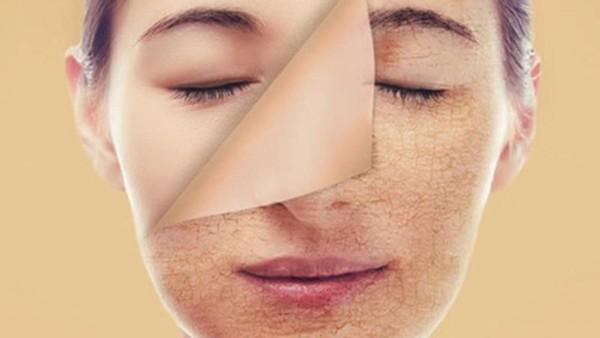 Chia sẻ cách phục hồi da sau khi dung kem trộn 1