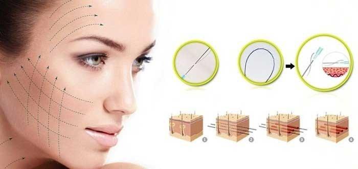 Chăm sóc căng da mặt bằng chỉ sinh học đúng cách 1